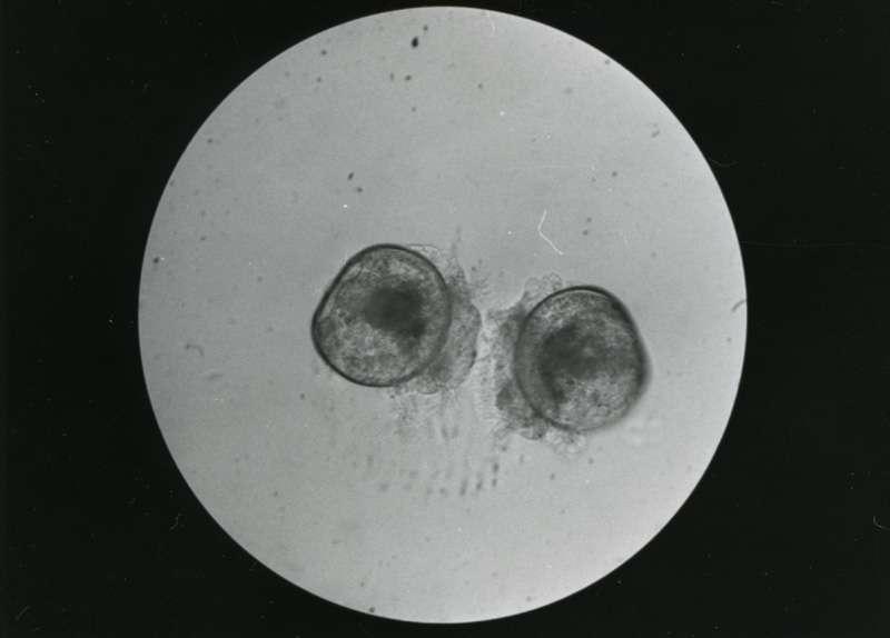 Østerslarver i mikroskop